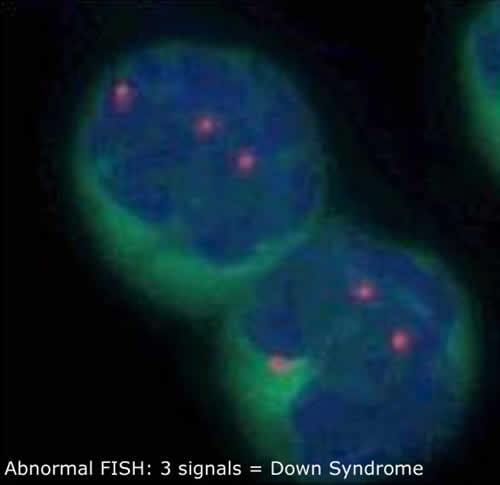 Abnormal FISH: 3 signals = Down Syndrome